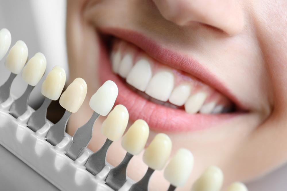 kobieta wybierająca odcień zębów